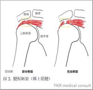 腱板の断裂の図